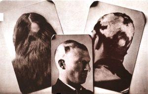 Alopecia_areata (2)